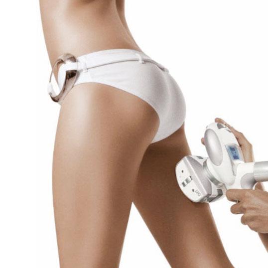 Define Cellulite